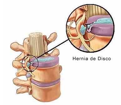 De la tos duele el tórax y la espalda es difícil respirar