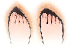 Los zapatos estrechos causan juanetes