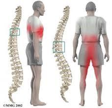 Síntomas de hernia de disco
