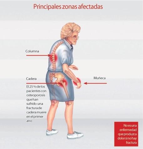 Zonas afectadas por la osteoporosis