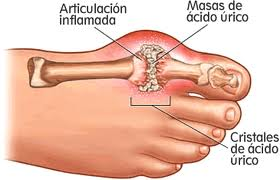 Artritis metabólica