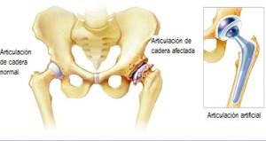 Artroplastia-articulación artificial