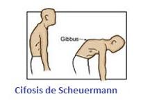 Cifosis de Scheuermann