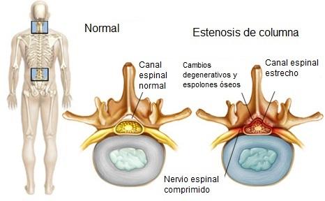 Estenosis de columna