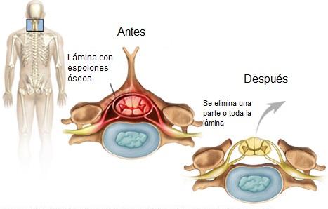 Laminectomía cervical