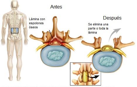 Laminectomía lumbar