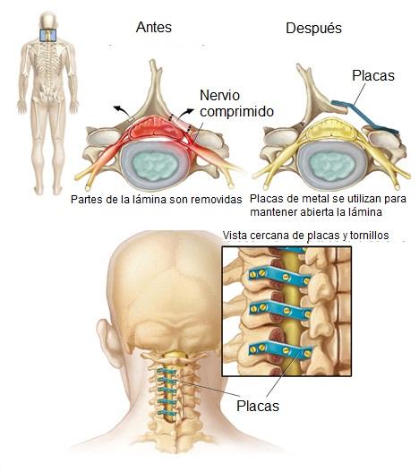 Laminoplastia