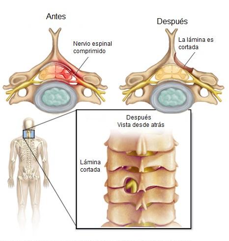 Laminotomía