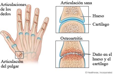 cardo mariano e acido urico tengo el acido urico alto que no puedo comer causas y sintomas del acido urico