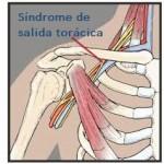 Síndrome de salida torácica