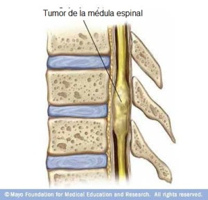 Tumor espinal