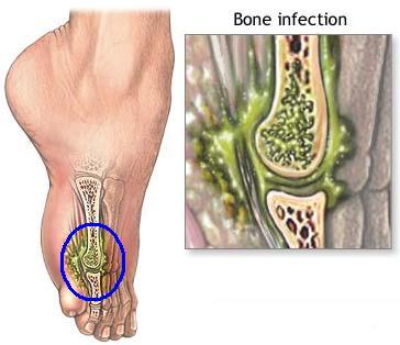 Infección de huesos u osteomielitis