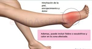 Síntomas infección de huesos