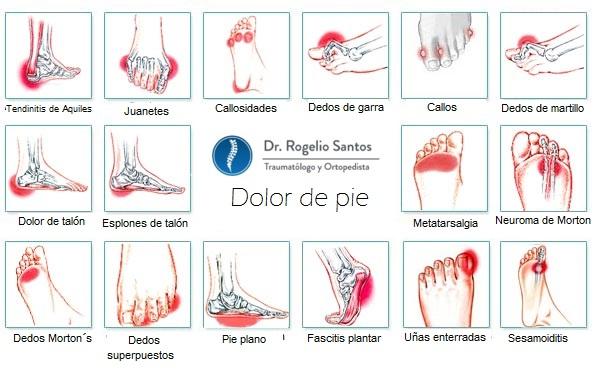 Dolor de pie • Dr. Rogelio Santos