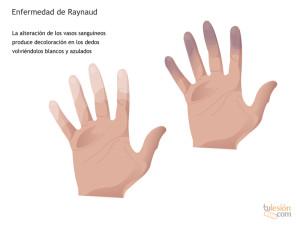 Enfermedad de Raynaud