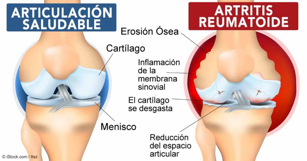 Artritis reumatoide en Monterrey