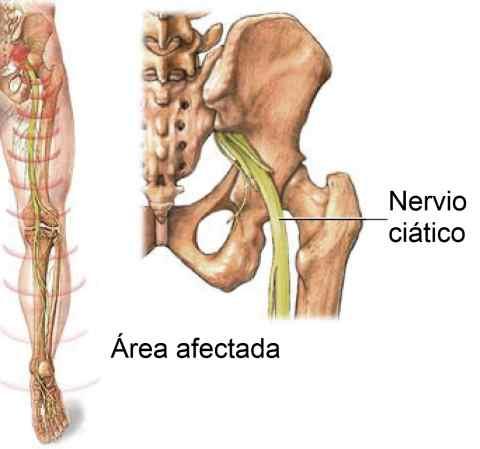 Dolor de nervio ciático en pierna izquierda - Dr. Rogelio Santos
